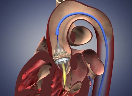 Transcatheter Aortic Valve Replacement (TAVR) Tulsa
