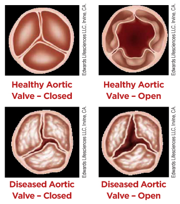 Healthy and Diseased Heart Valves