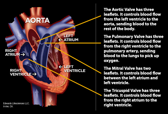 What Is Heart Valve Disease?   Oklahoma Heart Institute
