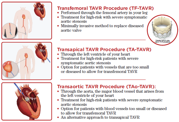TAVR Tulsa Procedure